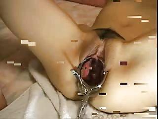 elmer maiden extreme cervix close-up